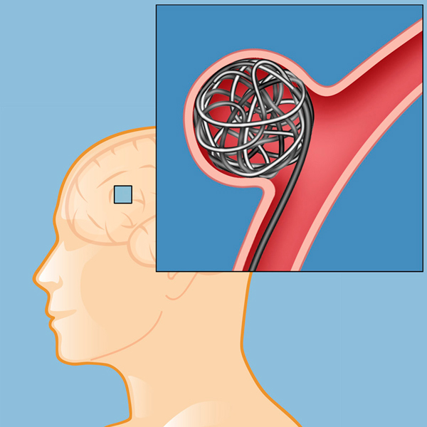 neurocirugía vascular