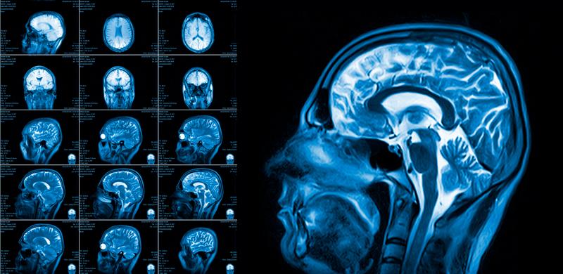 neurocirugía estereotáctica