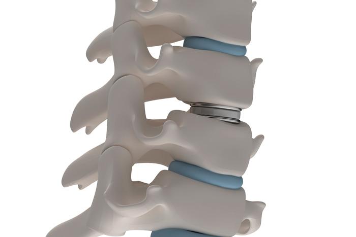 cirugía de hernia de disco