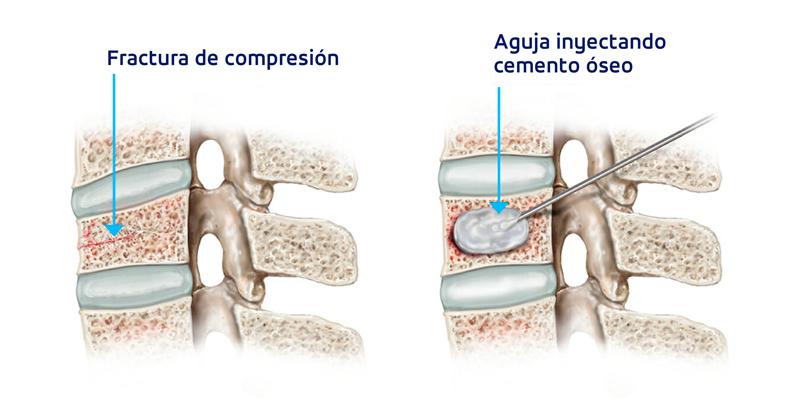 tipos de cirugía de columna